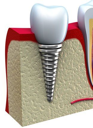 Cross-section illustration of a dental implant embedded in jawbone