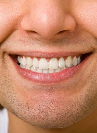 Close-up of a man's smile with symmetrical teeth