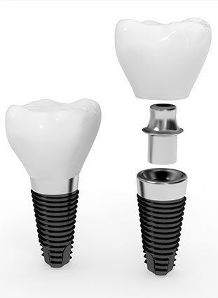 Photo of dental implants and restorations