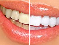 Side by side image showing results of teeth whitening