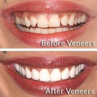 Before and after images of porcelain veneers