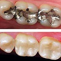 Comparison of silver vs. tooth colored fillings