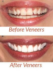Before and after comparison of porcelain veneers