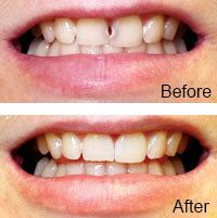 Before and after comparison of a chip fixed with dental bonding