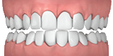 Illustration showing crowded teeth
