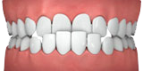 Illustration showing an underbite