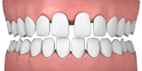 Illustration showing gaps in teeth