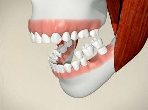 Digital illustration showing the location of a dental bridge