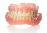 Two full arch immediate dentures