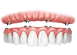 Illustration of a full-arch implant-supported denture