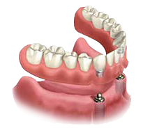 Illustration of a full-arch implant supported denture