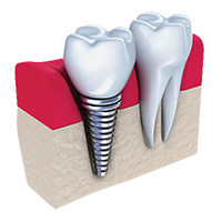 Digital illustration showing the components of an implant-supported crown