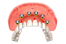 Illustration of a denture fitting onto several dental implants