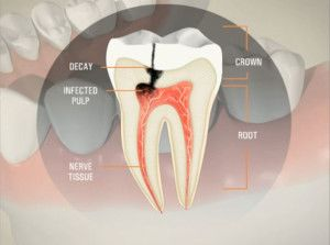 Illustration explaining a tooth infection