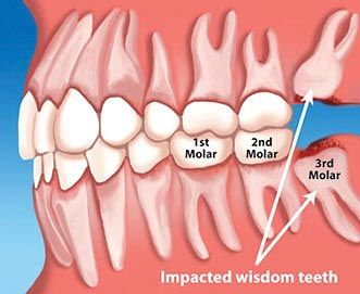 Illustration of impacted wisdom teeth