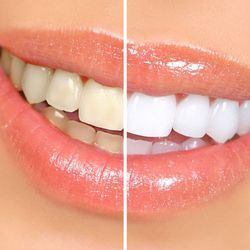 An illustrated example of a smile before and after teeth whitening