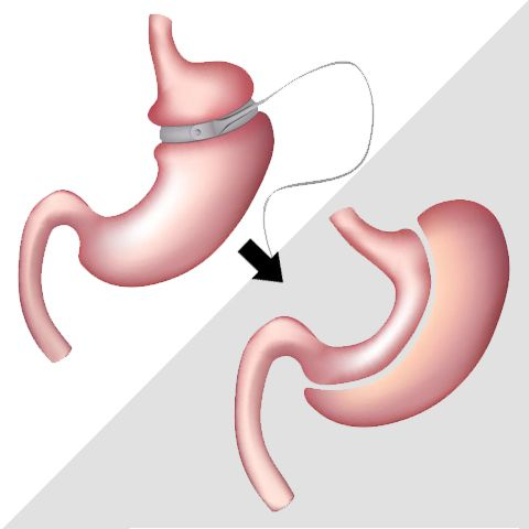 Illustration depicting revision bariatric surgery