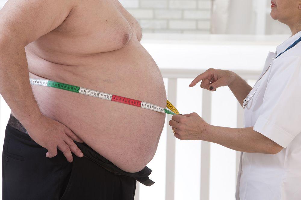 Nurse measuring obese man's waist