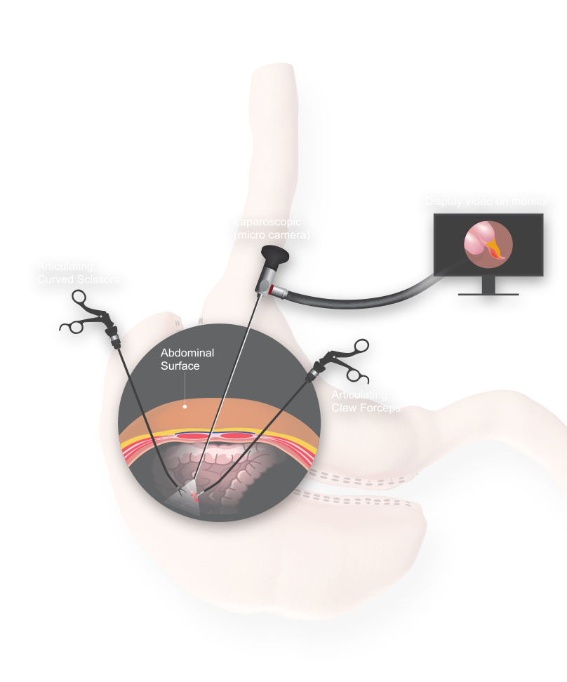Magnified illustration of single incision gastric sleeve surgery