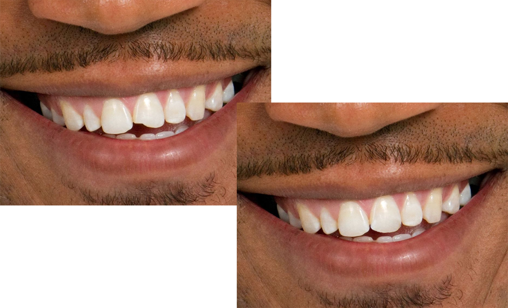 A before and after photo of dental bonding