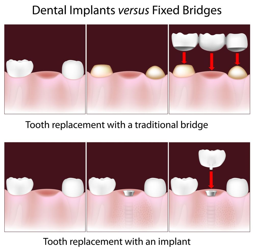 Graphic of implant-supported crown and traditional dental bridge