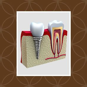 Implant-supported crown next to heathy tooth