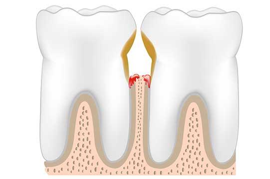 Illustration of gum disease and affected bone tissue