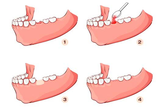 Stages of a bone graft