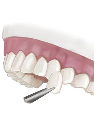 Illustration of veneer held up to teeth