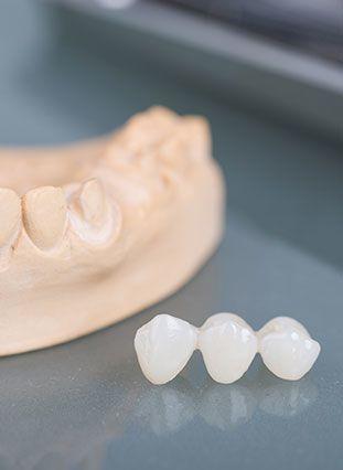 Photo of dental bridge and mold