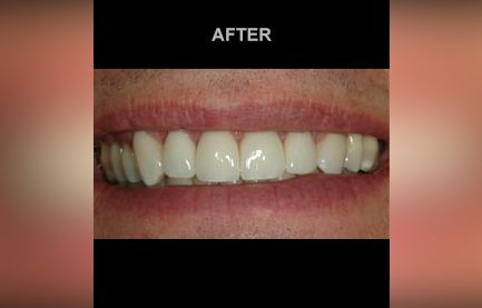 Close-up of teeth after cosmetic dentistry procedure