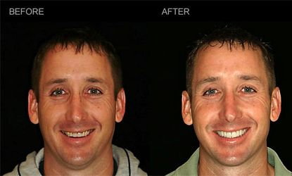 Head and shoulders photo comparing a patient's teeth before and after a smile makeover