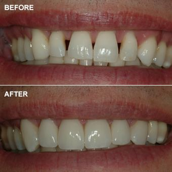 Close-up of mouth comparing natural teeth to porcelain veneers before cosmetic dentistry procedure