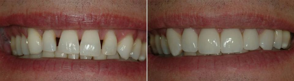 Before and after close-up of a veneers patient.