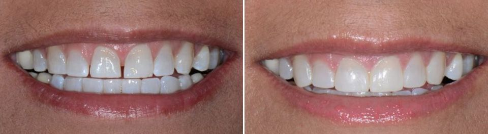 Before and after images of a dental bonding patient.