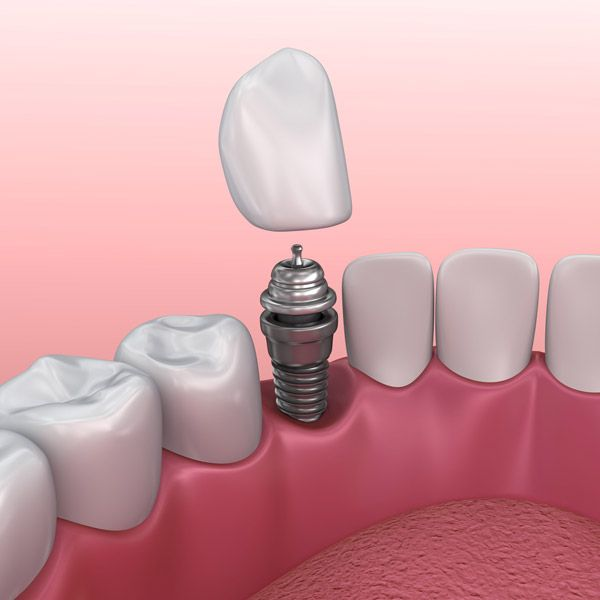 Cutaway illustration of a crown fitting on a dental implant