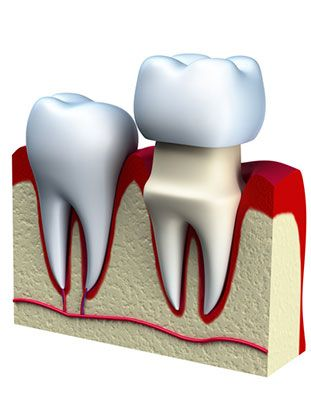 Illustration of dental crown being placed