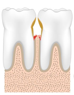 Illustration showing gum disease