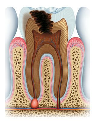 Illustration of infected tooth with large cavity