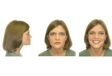 Facial photographs