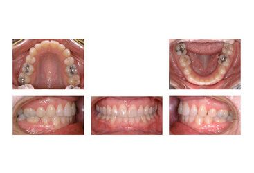 Intraoral camera images