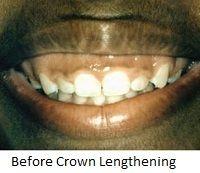Before crown lengthening