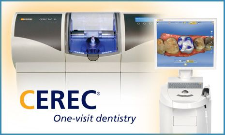 Image of a CEREC system
