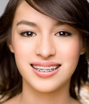 Brown haired girl smiling with traditional metal orthodontics