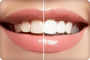 Close-up of a smile showing how whitening can lighten your teeth