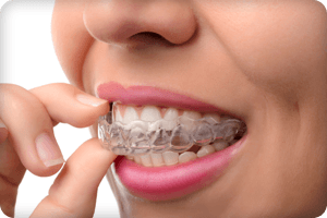 A patient putting a clear aligner on her teeth