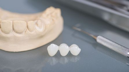 A dental bridge created from impressions of a patient's teeth
