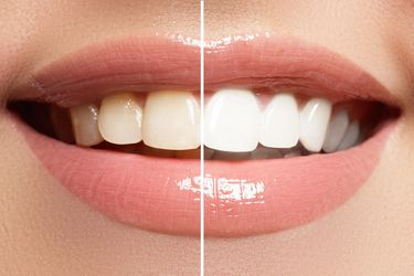 A before and after picture illustrates the dramatic effects of teeth whitening.