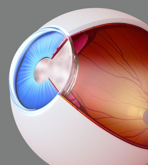 Eye affected by cataracts
