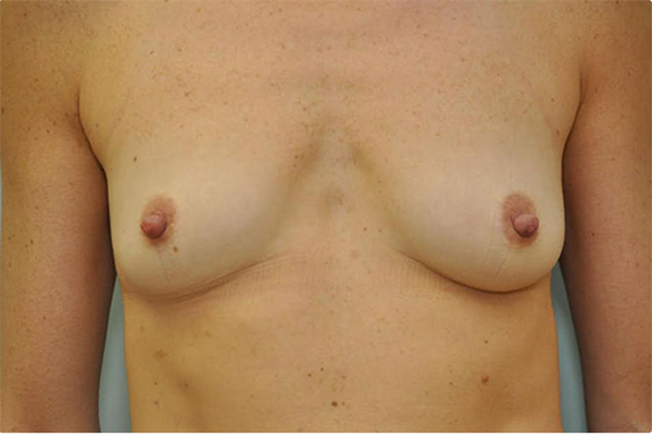 before - breast implant revision